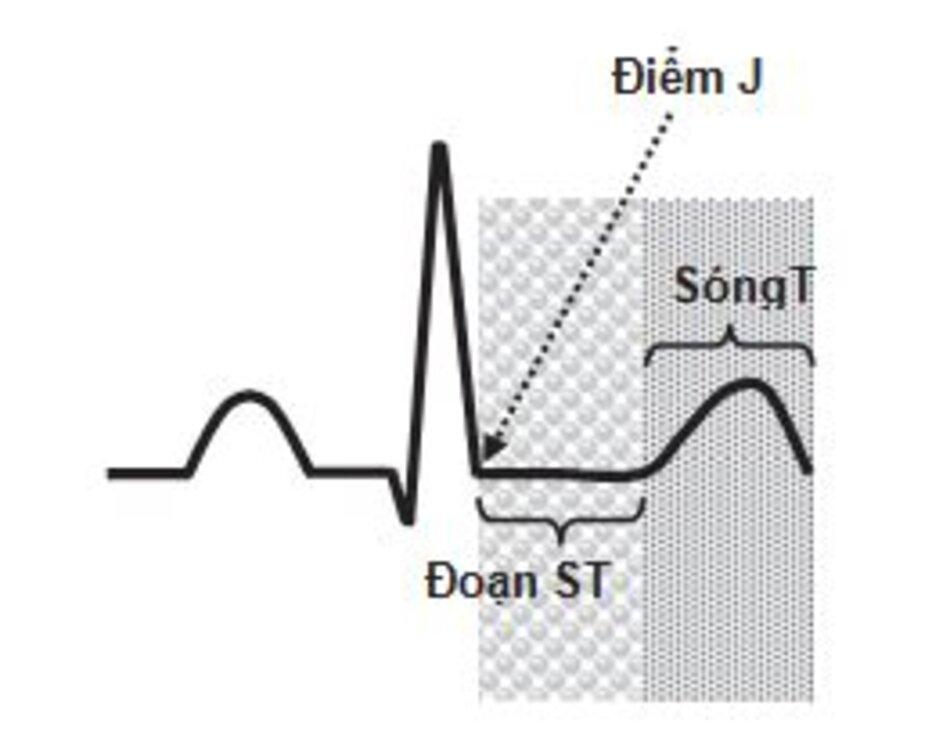 Hình 2.6: Tái cực tâm thất. Tái cực thất bắt đầu ngay sau quá trình khử cực và bắt đầu ở điểm J, điểm đánh dấu sự kết thúc của phức bộ QRS, kéo dài đến cuối sóng T. Điều này tương ứng với pha 1, 2 và 3 của điện thế hoạt động. Tái cực thất cho phép cơ thất hồi phục hoàn toàn và chuẩn bị tế bào cơ tim cho làn sóng khử cực kế tiếp.