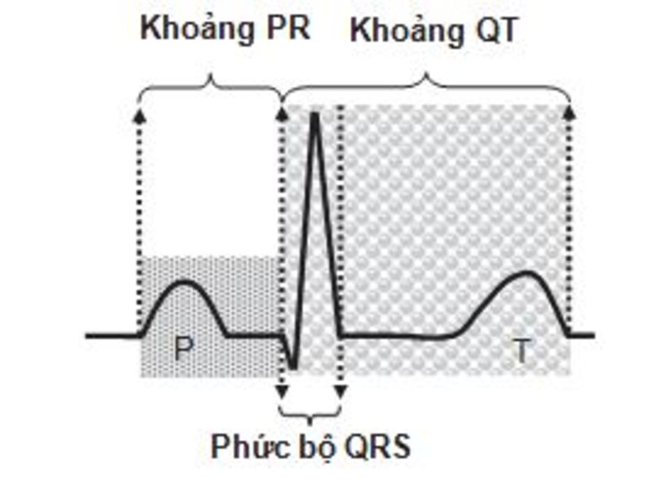 Hình 2.7: Khoảng PR, phức bộ QRS và QT. Khoảng PR được tính từ đầu sóng P đến đầu phức bộ QRS. Phức bộ QRS được tính từ đầu sóng đầu tiên đến cuối sóng cuối cùng và khoảng QT được tính từ đầu phức bộ QRS đến cuối sóng T.