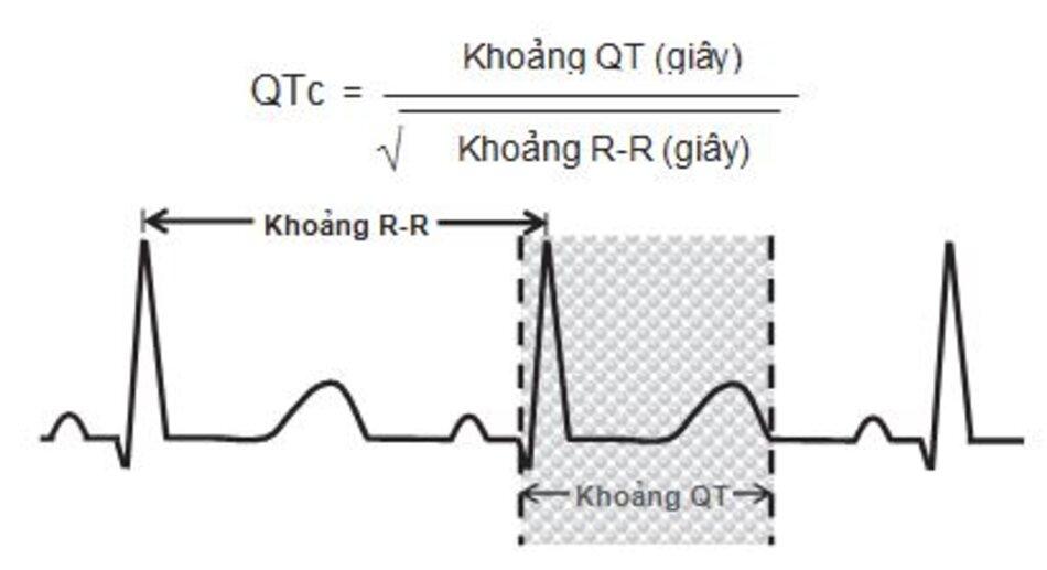 Hình 2.8: Khoảng QT. Khoảng QT được tính từ điểm bắt đầu phức bộ QRS đến điểm kết thúc sóng T. Khi tần số tim 70 lần/ phút, ta có thể dùng mắt để ước chừng QTc là bình thường nếu QT nhỏ hơn hoặc bằng 1/2 khoảng R-R. Khi có điều này không cần phải tính toán. Nếu QT lớn hơn 1/2 khoảng R-R, QTc có thể không bình thường và nên được tính toán (xem ví dụ hình. 2.9).