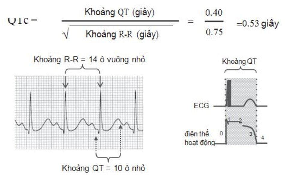 Hình 2.9: Cách tính QTc. Nếu không có máy tính, QTc có thể được tính bằng cách sử dụng bảng 2.1. Khoảng R-R trước đó cần phải đo bởi vì khoảng QT phụ thuộc vào khoảng R-R trước nó. Trong hình này, khoảng QT (10 ô nhỏ) dài hơn 1/2 khoảng R-R trước đó (14 ô vuông nhỏ), do đó QTc có lẽ là không bình thường và nên được tính như đã mô tả ở trên. Hình bên phải là lời nhắc nhở rằng khoảng QT bằng tổng thời gian của điện thế hoạt động (Pha 0 đến pha 3).