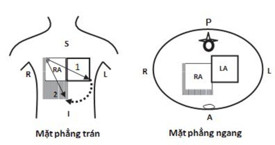 Hình 7.3: Nhĩ phải lớn. Ở mặt phẳng trán, nhĩ phải sẽ lớn xuống dưới và sang phải khiến trục sóng P chuyển sang bên phải (từ mũi tên 1 sang mũi tên 2). Ở mặt phẳng ngang, nhĩ phải lớn hơi hướng ra trước, điều này có thể làm sóng P dốc nhẹ ở chuyển đạo V1. Phần bóng biểu thị cho sự thay đổi xảy ra khi nhĩ phải lớn. S, superior (trên); I, inferior (dưới); R, right (phải); L, left (trái); A, anterior (trước); P, posterior (sau); RA, right atrium (nhĩ phải); LA, left atrium (nhĩ trái).