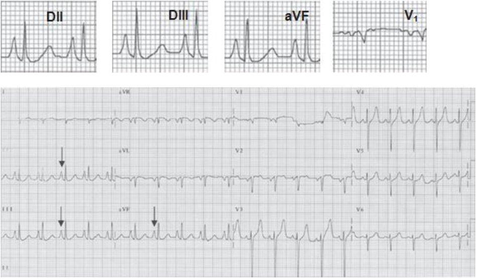 """Hình 7.4: Nhĩ phải lớn. ECG 12 chuyển đạo biểu hiện nhĩ phải lớn. Sóng P cao và nhọn, còn được gọi là """"P phế"""", được nhìn thấy ở các chuyển đạo DII, DIII và aVF (mũi tên). Chú ý rằng sóng P ở chuyển đạo DIII cao hơn ở chuyển đạo DI. Chuyển đạo DII, DIII, aVF và V1 được phóng to để quan sát biểu hiện của sóng P bất thường. Bệnh nhân mắc COPD."""