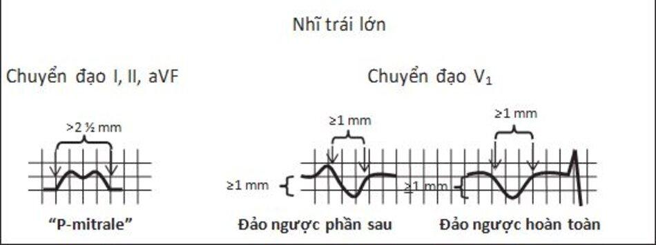 """Hình 7.5: Nhĩ trái lớn. Sóng P bị kéo dài ra >2.5 mm ở chuyển đạo I, II, aVF, với dạng chẻ đôi hoặc dạng chữ """"M"""". Kiểu này của sóng P được gọi là """"P-hai lá"""". Ở chuyển đạo V1, sóng P bị đảo ngược hoàn toàn hoặc có thể hai pha. Phần đảo ngược rộng và sâu, ≥1 mm chiều rộng và ≥1 mm chiều sâu."""