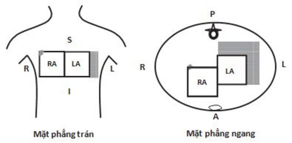 Hình 7.6: Nhĩ trái lớn. Nhĩ trái lớn sang trái và ra sau. Vì sự kích hoạt của nhĩ liên tiếp nhau, xuất phát từ nhĩ phải lan sang nhĩ trái nên sóng P sẽ kéo dài ra. Sóng P không chỉ dài ra mà còn bị chẻ đôi ở các chuyển đạo DI, DII, aVF. Phần kết thúc bị đảo ngược ở chuyển đạo V1. S, Superior (Trên); I, Inferior (Dưới); L, Left (Bên trái); A, Anterior (Trước); P, Posterior (Sau); RA, Right Atrium (Nhĩ phải); LA, Left Atrium (Nhĩ trái) Hình 7.6: Nhĩ trái lớn. Nhĩ trái lớn sang trái và ra sau. Vì sự kích hoạt của nhĩ liên tiếp nhau, xuất phát từ nhĩ phải lan sang nhĩ trái nên sóng P sẽ kéo dài ra. Sóng P không chỉ dài ra mà còn bị chẻ đôi ở các chuyển đạo DI, DII, aVF. Phần kết thúc bị đảo ngược ở chuyển đạo V1. S, Superior (Trên); I, Inferior (Dưới); L, Left (Bên trái); A, Anterior (Trước); P, Posterior (Sau); RA, Right Atrium (Nhĩ phải); LA, Left Atrium (Nhĩ trái)