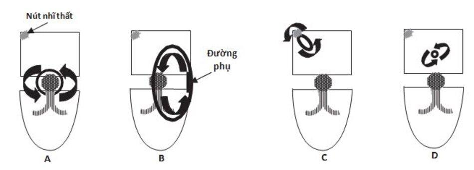Hình 16.1 Nhịp nhanh trên thất do vòng vào lại. (A) Nhịp nhanh vào lại nút nhĩ thất. Vòng vào lại gồm 2 đường dẫn truyền ở nút nhĩ thất. Đây là thể phổ biến nhất, chiếm hơn 60% các cơn nhịp nhanh phức bộ QRS hẹp do vòng vào lại. (B) Nhịp nhanh vào lại nhĩ thất. Loại nhịp nhanh này liên quan đến đường dẫn truyền phụ nối tâm nhĩ và tâm thất. Tần suất gặp khoảng 30% trong số các cơn nhịp nhanh trên thất do vòng vào lại. (C) Nhịp nhanh vào lại xoang nhĩ. Vòng vào lại bao gồm nút xoang và vùng tâm nhĩ lân cận. Loại này hiếm gặp. (D) Nhịp nhanh vào lại nhĩ. Vòng vào lại nhỏ hiện diện trong tâm nhĩ, loại SVT này cũng hiếm gặp .
