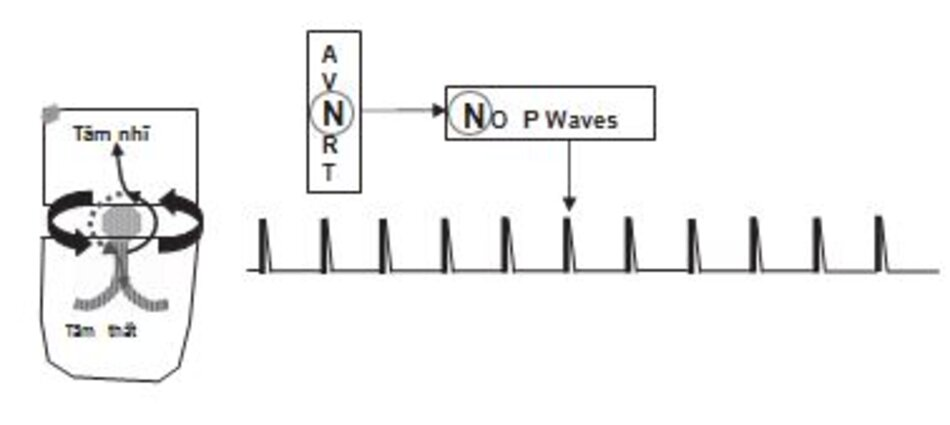 Hình 16.4: Sơ đồ biểu hiện cơ chế và hình ảnh của AVNRT. AVNRT được ghi nhận là một cơn nhịp nhanh phức bộ QRS hẹp với khoảng R-R đều và không có sóng P. Hình ảnh ECG của AVNRT được thể hiện ở Hình 16.5.