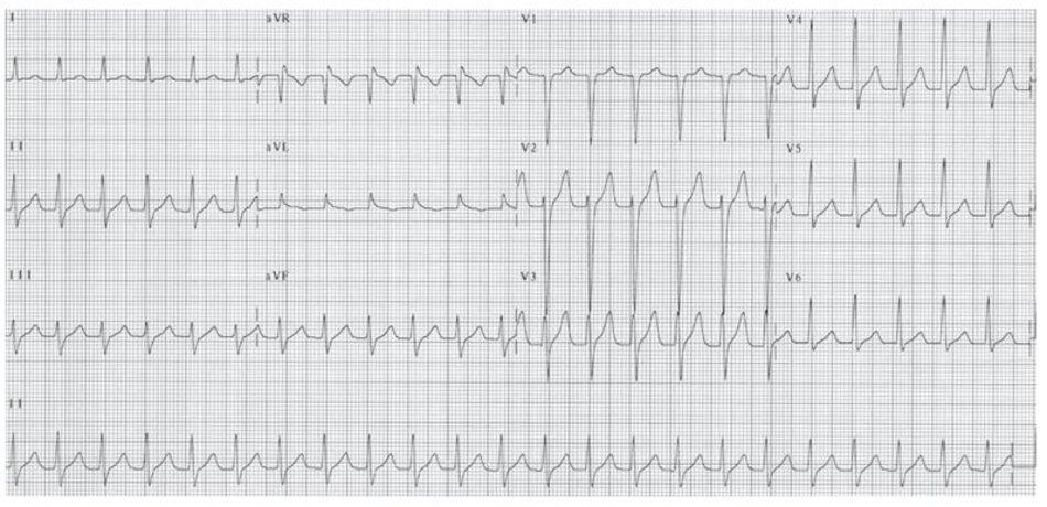 """Hình 16.5: Hình ảnh ECG của nhịp nhanh vào lại nút nhĩ thất (AVNRT). """"Không có sóng P"""", sóng P đảo được đã bị lẫn vào trong phức bộ QRS do vậy ta không thể nhìn thấy trên điện tâm đồ 12 chuyển đạo. Đây là biểu hiện thường gặp nhất của AVNRT."""