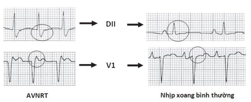 Hình 16.7: Nhịp nhanh vào lại nút nhĩ thất (AVNRT) trước và sau khi chuyển nhịp sang nhịp xoang. Lưu ý: sóng S giả ở DII và r' giả ở V1 trong cơn AVNRT sẽ mất đi sau khi chuyển sang nhịp xoang bình thường.