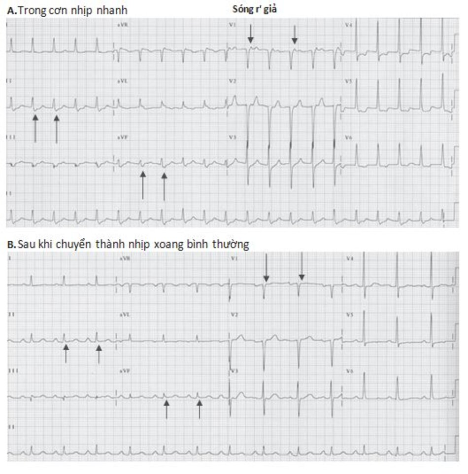 Hình 16.8: Nhịp nhanh vào lại nút nhĩ thất (AVNRT) với sóng S và R' giả. ECG trong cơn AVNRT: hình (A), lưu ý: sóng S giả ở chuyển đạo DII, aVF và r' ở V1 (mũi tên) không còn xuất hiện khi chuyển về nhịp xoang bình thường (B)