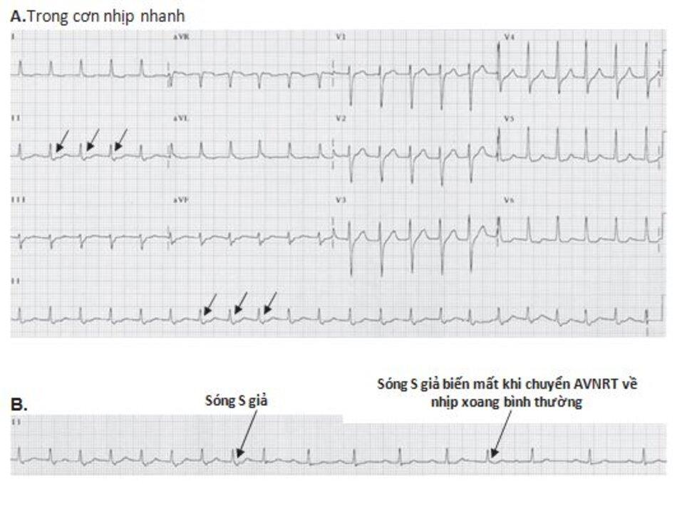 Hình 16.9: Sự chuyển nhịp tự phát từ cơn nhịp nhanh vào lại nút nhĩ thất (AVNRT) về lại nhịp xoang bình thường. (A) Hình ảnh ECG cho thấy sóng S giả ở chuyển đạo DII (mũi tên). (B) Hình ảnh ECG trên chuyển đạo DII của cùng một bệnh nhân giữa hai thời điểm: trong cơn nhịp nhanh (nửa bên trái của đạo trình) và sau quá trình tự chuyển về nhịp xoang bình thường (nửa bên phải của đạo trình). Lưu ý: Sóng S giả trong cơn AVNRT không còn xuất hiện (mũi tên)