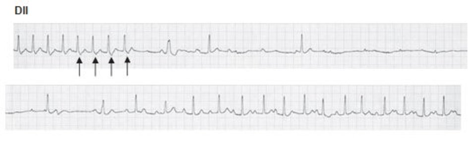 Hình 16.10: Chuyển cơn nhịp nhanh vào lại nút nhĩ thất (AVNRT) sang nhịp xoang bằng Adenosine. Adenosine là thuốc được chọn để chuyển AVNRT sang nhịp xoang. Phần đầu của đạo trình cho thấy cơn nhịp nhanh phức bộ QRS hẹp với sóng S giả (mũi tên) ở chuyển đạo DII phù hợp với AVNRT. Lưu ý sự biến mất của sóng S giả sau khi chuyển sang nhịp xoang. Cơn nhịp nhanh kết thúc tại sóng S giả (mũi tên cuối cùng) gợi ý vòng vào lại đã bị cắt đứt ở đường dẫn truyền chậm.