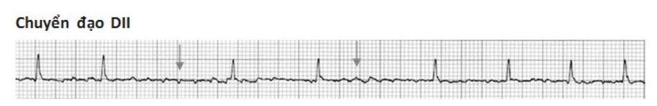 Hình 19.1: Rung nhĩ. Hình ảnh ECG của rung nhĩ. Để ý thấy các sóng rung nhĩ (mũi tên) nằm giữa các khoảng RR bất thường.