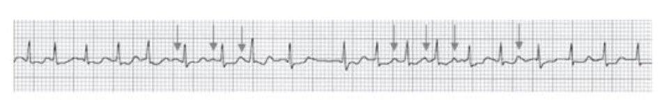 Hình 19.10: Rung nhĩ. Sóng F gồ ghề có thể bị nhầm với sóng P (mũi tên), do đó có thể chẩn đoán nhầm rung nhĩ với nhịp nhanh nhĩ đa ổ.