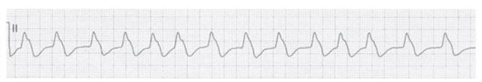 Hình 19.11: Rung nhĩ. Mặc dù không có hình ảnh sóng rung nhĩ giữa các phức bộ QRS, chẩn đoán rung nhĩ có thể dựa trên các khoảng RR không đều bất thường như trên hình. Tuy nhiên khi các khoảng RR trở nên đều (hình dưới), chẩn đoán rung nhĩ trở nên khó khăn hơn nhiều.