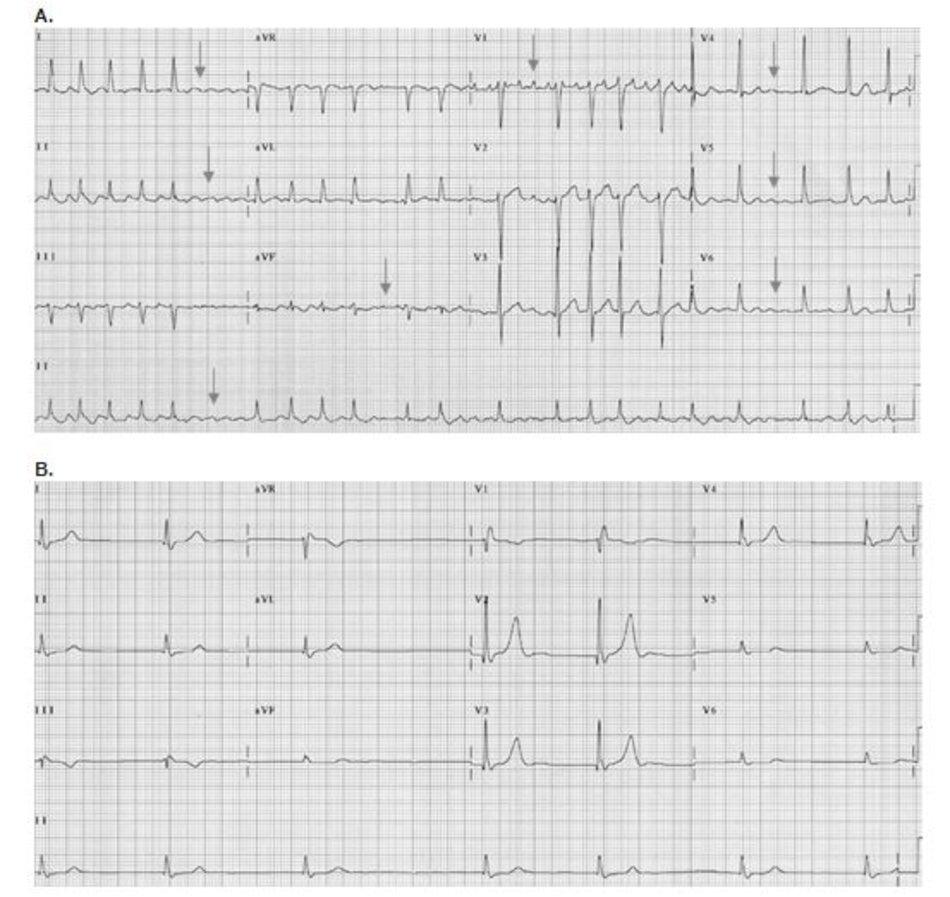 Hình 19.2: Rung nhĩ. Hai kết quả ECG. (A) Rung nhĩ với các sóng rung nhĩ ở V1 và các chuyển đạo khác được đánh dấu mũi tên. (B) ECG 12 chuyển đạo của một bệnh nhân khác cho thấy không có hình ảnh hoạt động điện của nhĩ, không xuất hiện các sóng rung nhĩ trong tất cả các chuyển đạo. Chẩn đoán rung nhĩ dựa trên các khoảng RR không đều bất thường.