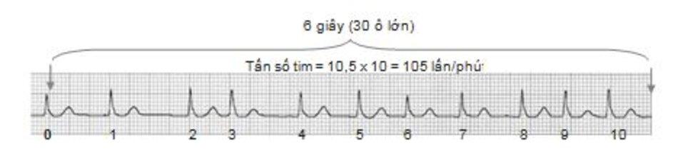 Hình 19.3: Tính tần số trong 6 giây. 30 ô lớn tương ứng với 6 giây. Trên đây là một ví dụ, có 10,5 phức bộ QRS trong khoảng thời gian 6 giây do đó tần số tim là 10,5x10 = 105 lần/phút.