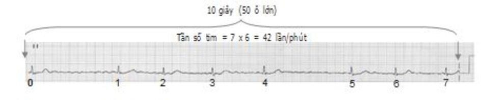 Hình 19.4: Tính tần số trong 10 giây. Khi tần số tim rất chậm, cần phải tính tần số tim trong khoảng 10 giây để tăng độ chính xác. Như ví dụ trên, có 7 phức bộ QRS trong 10 giây. Tần số tim là 7 x 6 = 42 lần/phút.