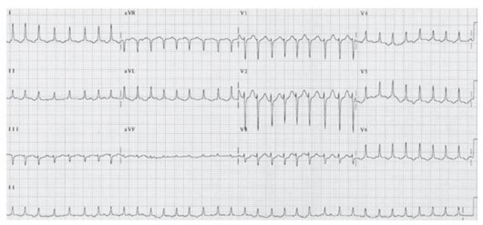 Hình 19.8: Rung nhĩ đáp ứng thất nhanh. Khi tần số thất trở nên rất nhanh, sự bất thường của các khoảng RR trở nên khó phát hiện. Rung nhĩ dễ bị chẩn đoán nhầm với nhịp nhanh trên thất, đặc biệt khi sóng F không rõ ràng. Lưu ý rằng, khoảng RR không đều. Xoa xoang cảnh sẽ giúp ích cho chẩn đoán.