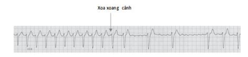 Hình 19.9: Xoa xoang cảnh. Nhịp trông có vẻ đều và có thể bị chẩn đoán nhầm với nhịp nhanh trên thất. Khi nghi ngờ chẩn đoán rung nhĩ, xoa xoang cảnh sẽ giúp ích nhằm phân biệt rung nhĩ với các loại rối loạn nhịp trên thất có phức bộ QRS hẹp khác. Xoa xoang cảnh (mũi tên) làm chậm tần số thất và làm giãn cách các khoảng RR. Điều này cho phép phát hiện đường đẳng điện lượn sóng, đặc trưng cho rung nhĩ.
