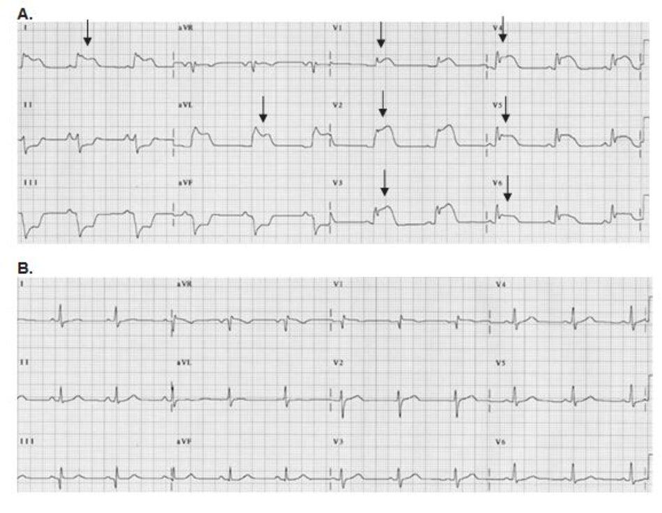 Hình 23.4: Co thắt vành. Điện tim A và B được đo từ cùng một bệnh nhân. (A) ST chênh lên nhiều chuyển đạo (mũi tên) có thể do huyết khối tắc nghẽn hoặc co thắt vành. (B) Sau khi dùng nitroglycerin, ST trở về đẳng điện chı ̉ sau vài phút, điều này chứng tỏ nguyên nhân là do co thắt vành. Chụp mạch vành cũng cho thấy lòng mạch hoàn toàn trơn láng và không có huyết khối tắc nghẽn.