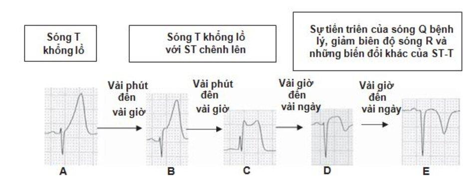 Hınh 23.5: Nhồi máu cơ tim ST chênh lên (STEMI). Sóng T khổng lồ (hyperacute) đánh dấu vùng thiếu máu cục bộ (A-C) theo sau bởi ST chênh lên (B,C), giảm biên độ sóng R (D) hoặc sự phát triển của sóng Q bệnh lý (E) và sự đảo ngược của sóng T (D,E). Sự tiến triển của STEMI từ sóng T khổng lồ đến sóng Q bệnh lý có thể hoàn thành trong 6h sau khi khởi phát triệu chứng nhưng cũng có thể tiến triển chậm hơn trong vài ngày.