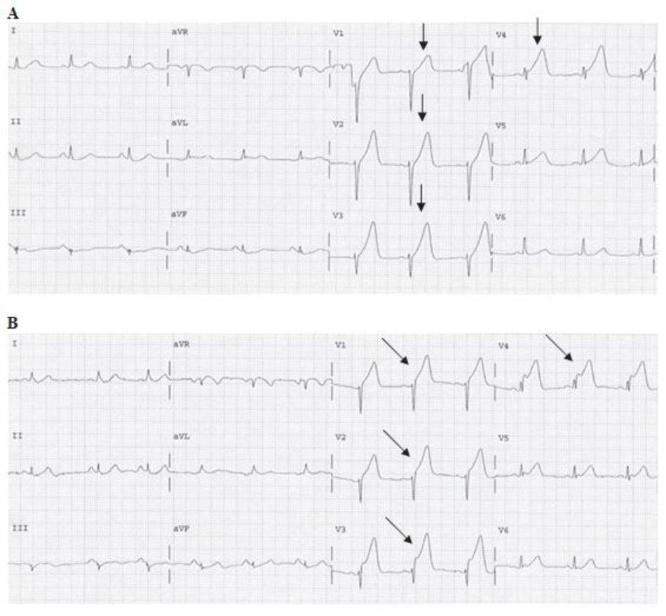 Hınh 23.6: (A) Sóng T khổng lồ. ECGA đầu tiên là của một bệnh nhân vào viện vı ̀ khởi phát đau ngực cấp. Sóng T cao, khổng lồ (mũi tên) từ V1 đến V4 với ST chênh lên ở V3-V4. Lưu ý rằng sóng T khổng lồ cũng cho biết được vị trí của động mạch bị tắc và thường xuất hiện đầu tiên, trước cả khi đoạn ST bắt đầu chênh lên. Các ECG tiếp theo được ghi lại trong hınh (B-D). (B) Nhồi máu cơ tim ST chênh lên (STEMI). ECG này được ghi lại 15 phút sau ECG đầu tiên, ngoài sóng T khổng lồ, ST chênh lên càng mạnh hơn từ B V1-V4(mũi tên). (còn tiếp)