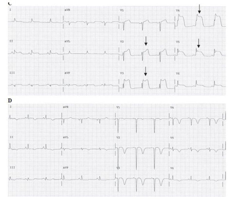CHınh 23.6: ( tiếp tục) (C) Nhồi máu cơ tim ST chênh lên. ECG trên được ghi lại khoảng 1.5h sau ECG đầu tiên (hınh A). Đoạn ST tiếp tục chênh lên thậm chı ́ sau liệu pháp tiêu sợi huyết. ST chênh lên trở nên càng rõ ở V2-V6 và chênh lên nhẹ ở II, III, aVF. Sóng T khổng lồ vẫn tiếp tục hiện diện ở V2- V5 (mũi tên). (D) Nhồi máu cơ tim ST chênh lên. ECG này được ghi lại 13 ngày sau đó. Ta thấy xuất hiện phức bộ QS và sự giảm biên độ của sóng r từ V1 đến V5. D Đoạn ST lúc này đã trở về đẳng điện và sóng T thı ̀ đảo ngược từ V1-V6 và chuyển đạo I, II, aVL.
