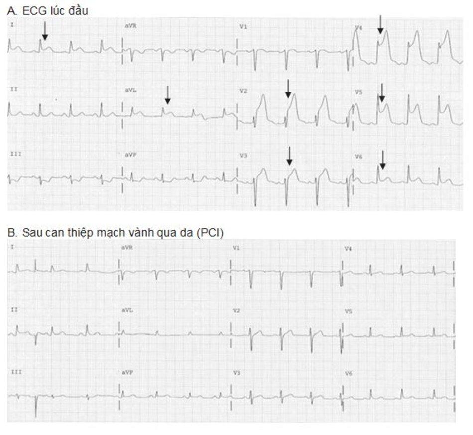 Hình 23.7: Nhồi máu cơ tim ST chênh lên. ECG (A) được ghi lại trước khi liệu pháp tiêu sợi huyết được thực hiện. ST chênh lên ở II, III, aVF và V4-V6 (mũi tên) với ST chênh xu