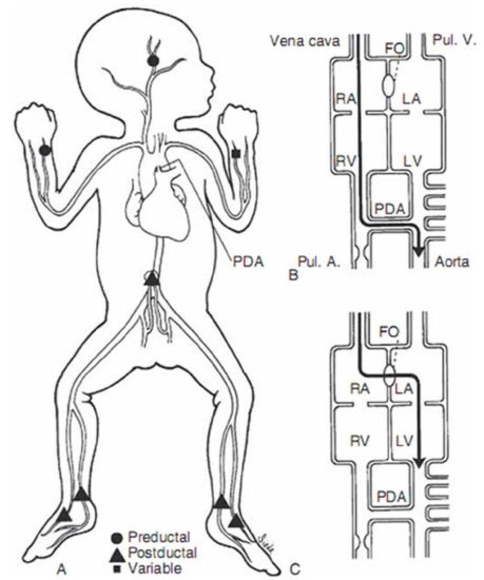 Hình 10-4 Shunting máu trong tăng áp động mạch phổi. A, Vị trí lấy mẫu máu. B, shunt từ phải sang trái qua ống động mạch. C, shunt từ phải sang trái qua lỗ bầu dục. FO, foramen ovale; LA, left atrium; LV, left ventricle; PDA, patent ductus arteriosus; RA, right atrium; RV, right ventricle.