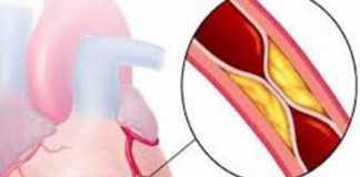 Hội chứng vành cấp: Nhồi máu cơ tim ST chênh lên