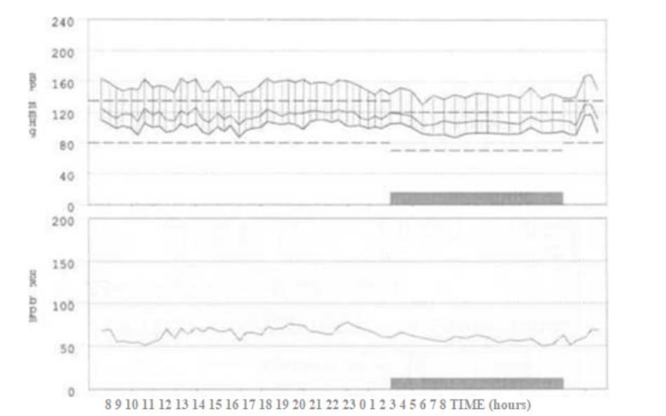FIGURE 1.1 24-Hour ambulatory blood pressure monitoring