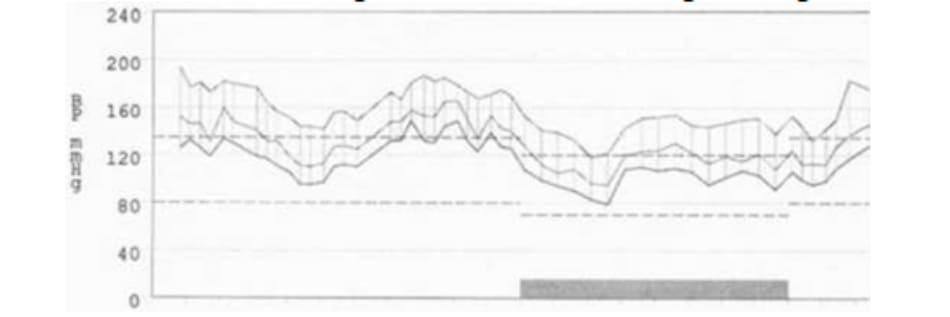 FIGURE 2.1 24-hour blood pressure profile