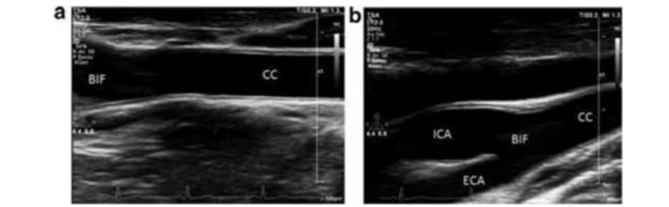 FIGURE 2.5 (a, b) Carotid artery ultrasound. CC, common carotid; BIF, carotid bifurcation; ICA, internal carotid artery; ECA, external carotid artery