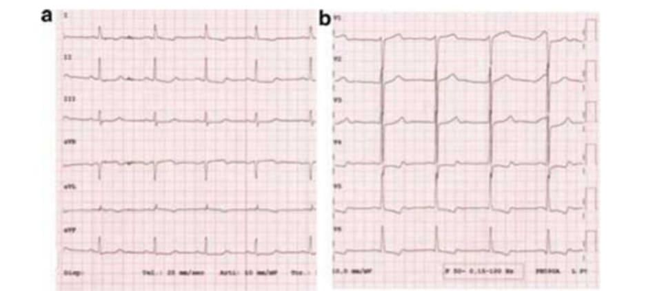 FIGURE 3.2 Electrocardiogram