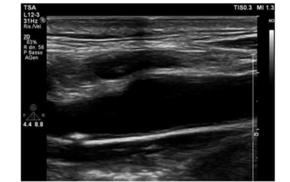 FIGURE 3.3 Carotid ultrasound