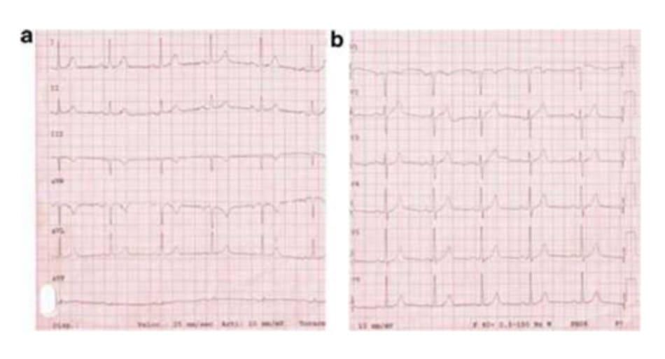 FIGURE 4.1 Electrocardiogram