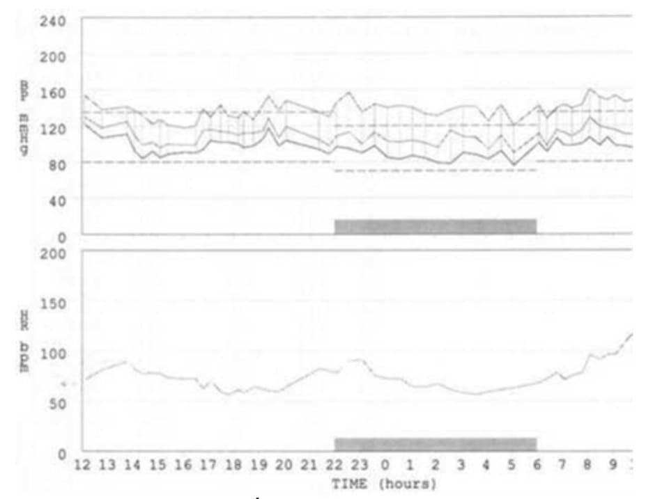 FIGURE 4.6 24-hour blood pressure profile at second follow-up visit