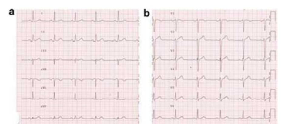 FIGURE 5.1 (a, b) Electrocardiogram