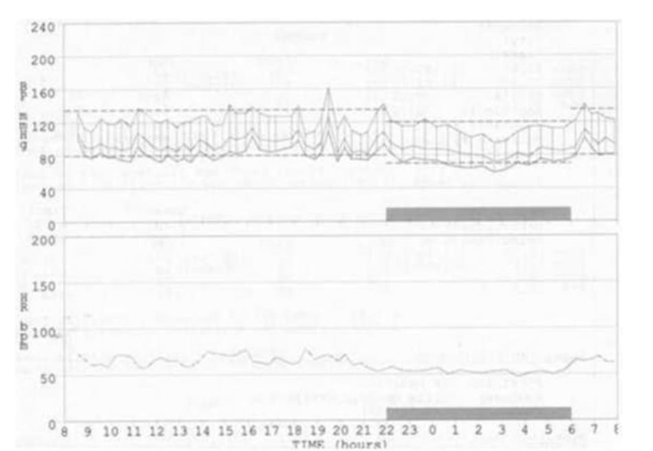 FIGURE 5.3 24-hour blood pressure profile