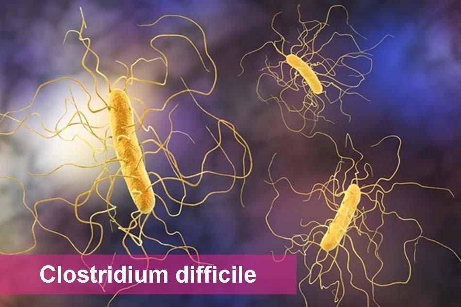 Vi khuẩn Clostridium difficile