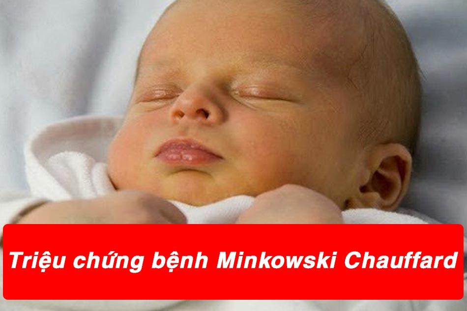 Triệu chứng của bệnh nhân mắc bệnh Minkowski Chauffard