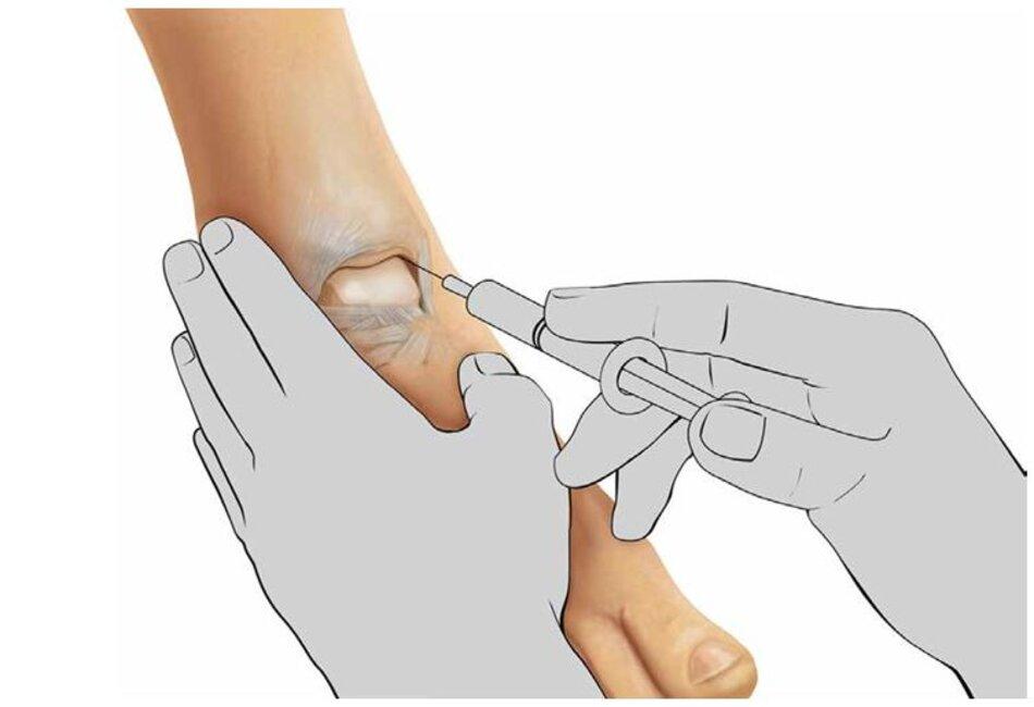 Hình 10.1 Khớp cổ chân