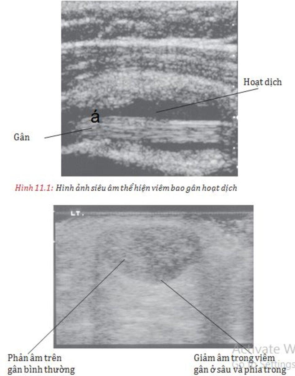 Hình 11.2: Siêu âm cắt ngang gân Acilles