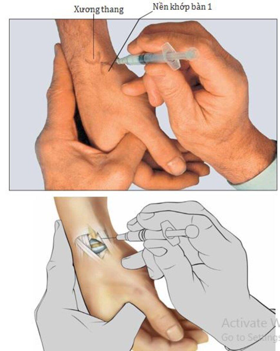 Hình 6.1 Tiêm khớp cổ - bàn tay 1
