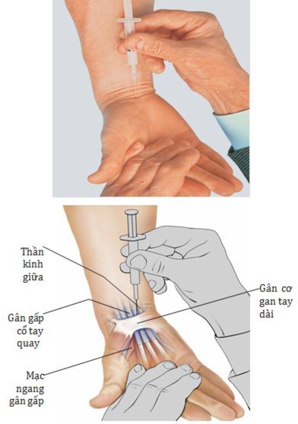 Hình 6.2 Hội chứng ống cổ tay