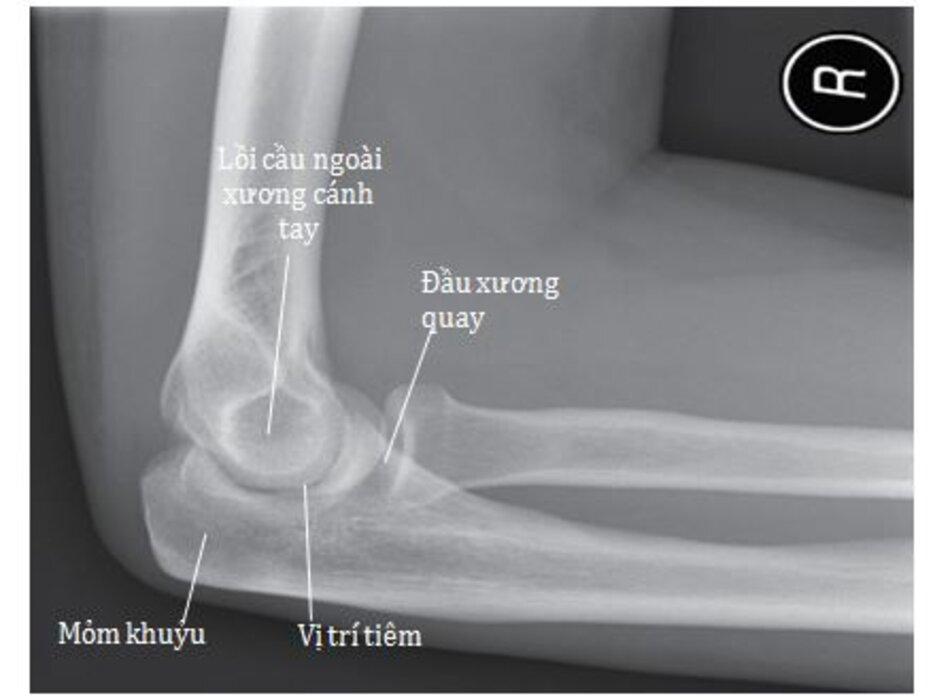 Hình 7.4 Hình X-quang nghiêng khớp khuỷu bên phải