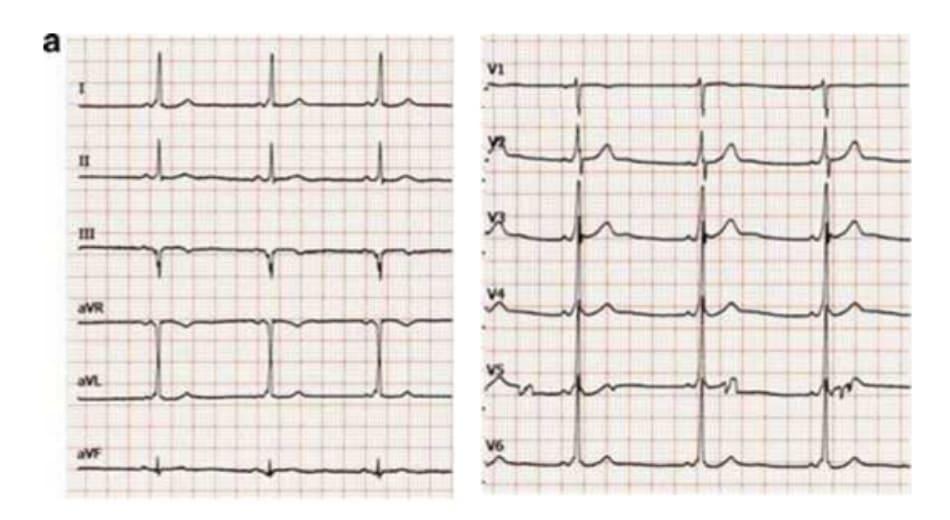 Hình (1,2) Electrocardiogra