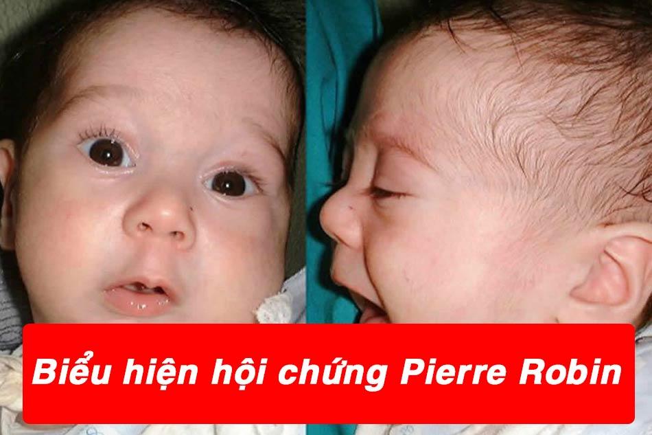 Biểu hiện của trẻ mắc hội chứng Pierre Robin