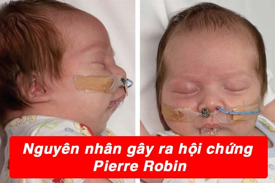 Nguyên nhân trẻ mắc hội chứng Pierre Robin