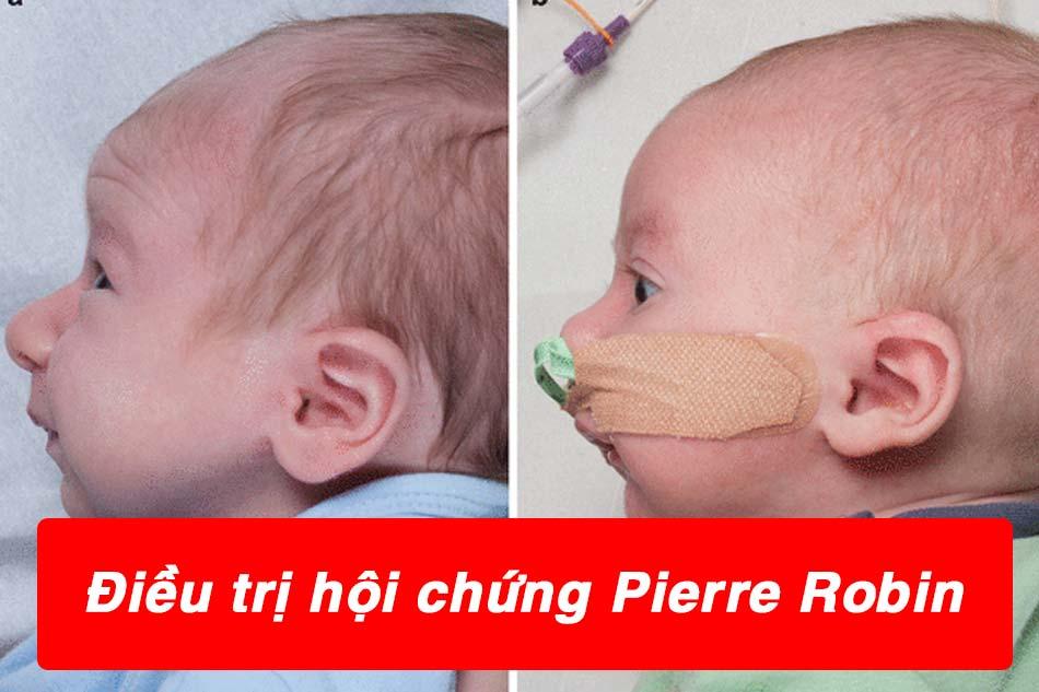 Điều trị cho trẻ mắc hội chứng Pierre Robin